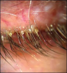 Cylindrical dandruff from Demodex on the lashes of a patient with rosacea.