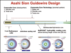 Overview of the Sion guidewire construction.