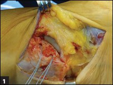 The ATFL cuff has been dissected with suture anchors placed in fibula for typical modified Broström repair