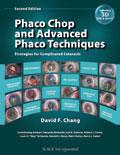 Phaco Chop Second Edition