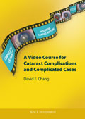 Video Course for Cataract Complications and Complicated Cases