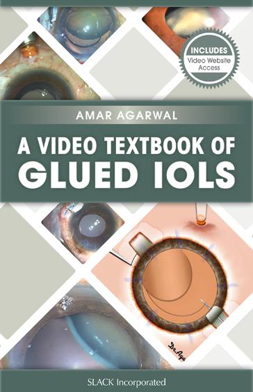 Video Textbook of Glued IOLs
