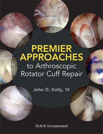 Premier Approaches to Arthroscopic Rotator Cuff Repair