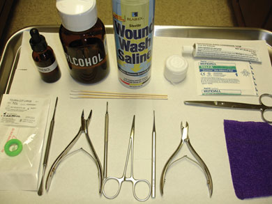How Do You Treat An Ingrown Toenail Should I Prescribe