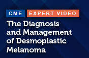 The Diagnosis and Management of Desmoplastic Melanoma