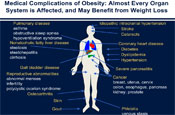 Treatment Options for Obesity: When and How Do They Fit?