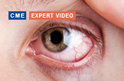 How Will Novel Mechanisms of New and Emerging Treatments Address the Signs and Symptoms of Dry Eye?