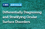 Differentially Diagnosing and Stratifying Ocular Surface Disorders