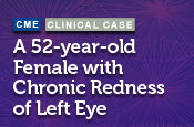 Case Presentation: A 52-year-old Female with Chronic Redness of Left Eye