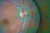 Wet Macular Degeneration: A Review of Pivotal Clinical Trials