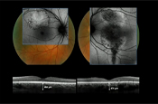 Making Difficult Retinal Diagnoses with the Latest Imaging Techniques