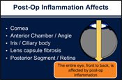 Managing Uveitis and Postoperative Inflammation: A Review of Local Therapies and MOA