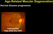 Treating Wet Macular Degeneration: The Current State of the Art