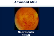 Examining the Evidence on the Use of Nutritional Supplements in AMD