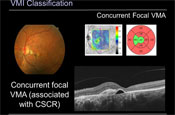 Optical Coherence Tomography in Classifying Disorders of the Vitreomacular Interface: A Contemporary View