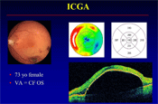 The Utility of ICG Angiography (ICGA) in 2015