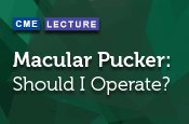 Macular Pucker: Should I Operate?