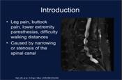 Degenerative Lumbar Spinal Stenosis Indications to Intervene