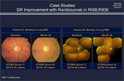 Diabetic Retinopathy Level: 5 Year Results from the RIDE/RISE Extension Study