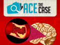 Ace the Case: 72-Year-old Woman with Left Side Numbness and Speech Problems