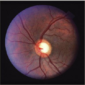 Figure 1. This image shows a suspicious-appearing optic nerve head, but note the healthy-appearing neuroretinal rim tissues, which honors the ISNT — or inferior, superior, nasal, temporal — rule.