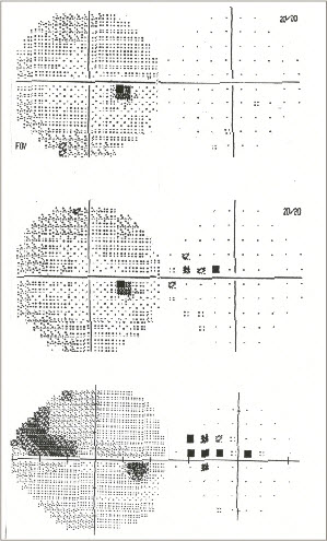 Figure 12. After obtaining a third visual field, it can be readily observed that the cluster of nasal scotomas seen previously has grown, indicating progressive glaucomatous optic neuropathy.