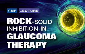 ROCK-solid Inhibition in Glaucoma Therapy
