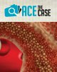 Ace the Case: A 48-Year-Old Female Diagnosed With Polycythemia Vera (PV) 7 Years Ago