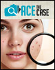 Ace the Case: A 23-Year-Old Woman with Facial Acne
