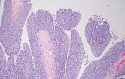 Urothelial bladder cancer