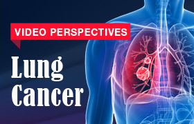 Video Perspectives: Lung Cancer