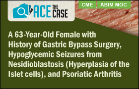 Ace the Case: A 63-Year-Old Female with History of Gastric Bypass Surgery, Hypoglycemic Seizures from Nesidioblastosis (Hyperplasia of the Islet cells), and Psoriatic Arthritis