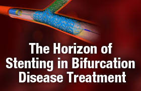 The Horizon of Stenting in Bifurcation Disease Treatment