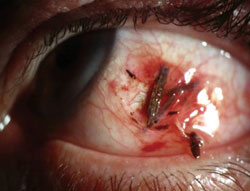 Carefully examine patients with trauma-induced retinal ...