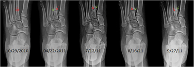 Left foot radiographs between 10/29/2010 and 9/27/11.