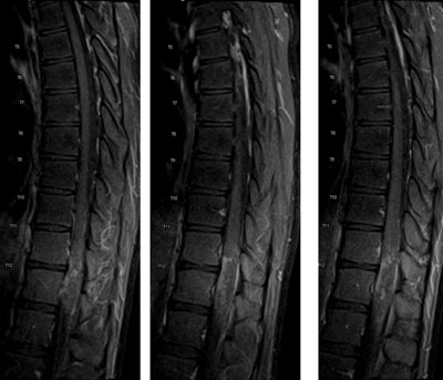 Figure 1B. Serial sagittal postcontrast T1-weighted image demonstrates associated patchy, heterogeneous contrast enhancement.