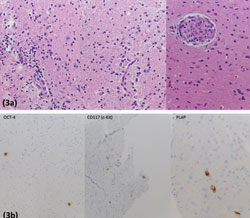 Figure 3. Biopsy specimen (Figure 3a) demonstrates hypercellular CNS tissue with rare atypical cells with large nuclei, slightly irregular nuclear contours, open chromatin and often multiple prominent nucleoli.