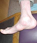 Complete valgus collapse of the talus bone