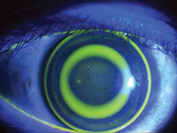 The anterior segment after fluorescein