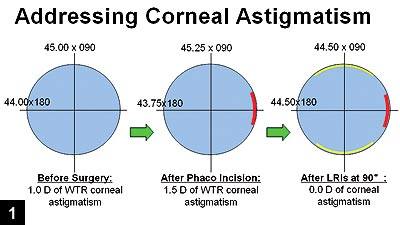 Figure 1: Before surgery, the patient has 1 D of with-the-rule corneal astigmatism
