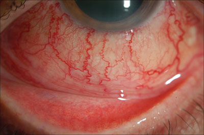 Figure 1. Left eye: Dilated corkscrew-shaped conjunctival vessels