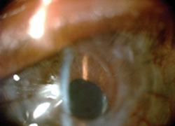 Figure 3. On day 1 after KeraKlear procedure, the iris details are visible.