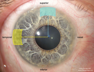 Construction Of Corneal Phaco Incision Key To Cataract Surgery