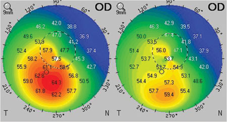 Improvement in corneal topography from preop to 1 year after CXL may lead to improvement in corneal and total ocular aberrations.
