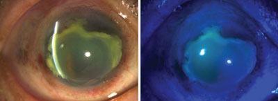 Slit lamp photos of the right eye