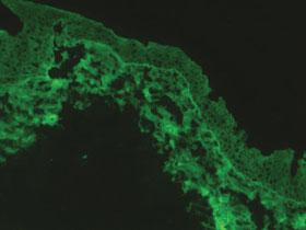 Direct immunofluorescence of the conjunctival specimen