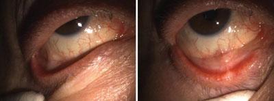 slit lamp exam of the right eye