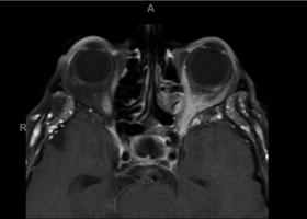 left retro-orbital enhancing soft tissue with medial orbital wall involvement