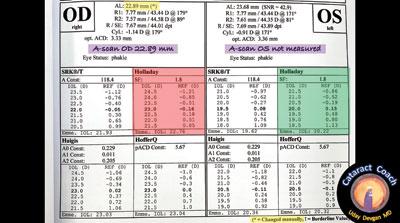 IOL calculations