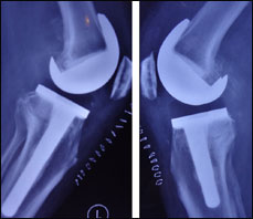 The deep medial collateral ligament (MCL) and semimembranosus were released, a strip of the posterior capsule was resected and reduction osteotomy was performed.